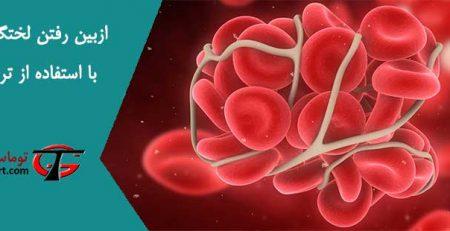 از بین رفتن لختگی خون با استفاده از تردمیل